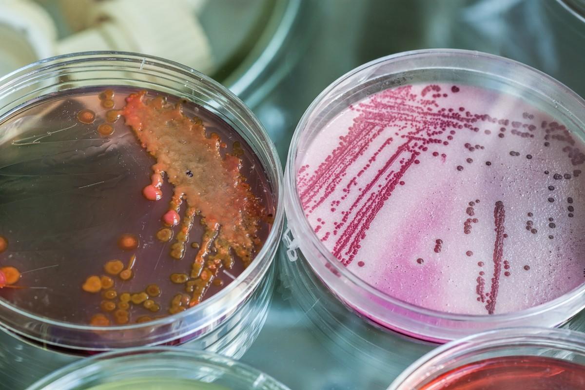 Legionella image